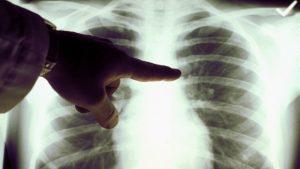 التدخين في طليعة الأسباب المؤدّية إلى سرطان الرئة/American Cancer Society/Getty Image