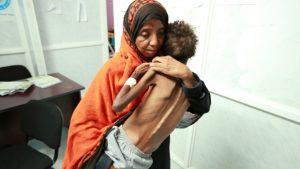 امرأة يمنيّة تحمل طفلها الذي يعاني من سوء التغذية/Abduljabbar Zeyad/Reuters