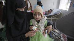 طفلة يمنيّة تتلقّى العلاج في أحد مستشفيات اليمن في 09-09-2019/Hani Mohammed/CP