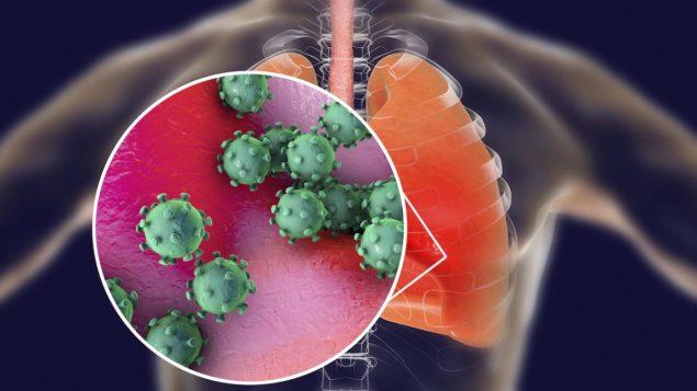 ثير فيروس كورونا الخشية من تكرار فيروس سارس المماثل الذي أدى إلى مقتل 650 شخصاً في الصين القارية وهونغ كونغ بين عامي 2002 و2003 - iStock