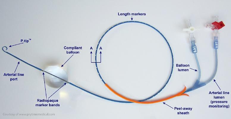 The ER-REBOA device (via MUHC)