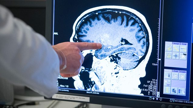 Parkinson's the target of groundbreaking Canadian research