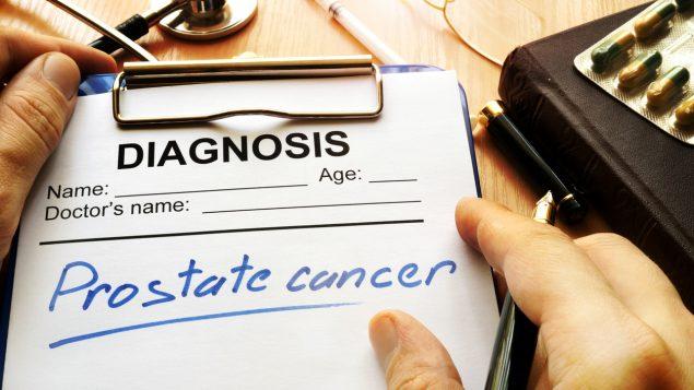Estudio de Harvard sobre hombres y cáncer de próstata