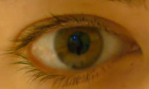 Long wait times for eye care in Nunavut, Canada are a concern to patients.  (CBC.ca)