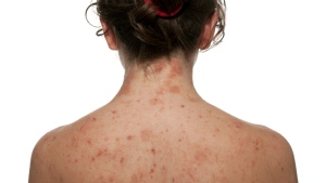 A woman with atopic dermatitits, a type of eczema, is shown. (iStock)