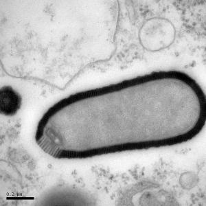 Virus géant trouvé dans du pergélisol de 30 000 ans et qui a réussi à infecter une amibe lorsque ranimé (Courtoisie: Julia Bartoli et Chantal Abergel, IGS et CNRS-AMU)