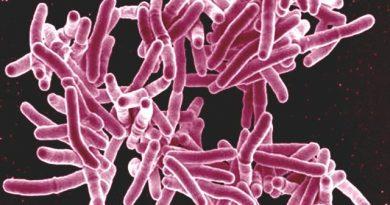 alaska-tuberculosis-rate-dips-but-still-among-the-u-s-highest