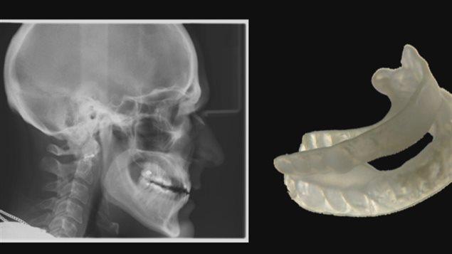 Orthèse mandibulaire - Radio-Canada
