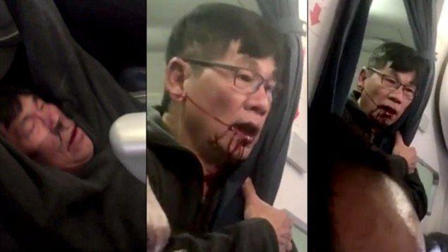 L'homme littéralement arraché de son siège et tiré par les bras de son siède d'avion dimanche de la semaine dernière.