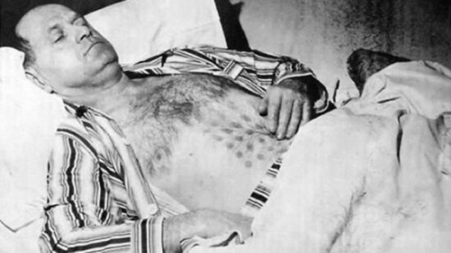 Stefan Michalak a été soigné à l'hôpital pour des brûlures à la poitrine et à l'estomac qui se sont ensuite transformées en plaies surélevées sur un motif en forme de grille. Photo : CBC