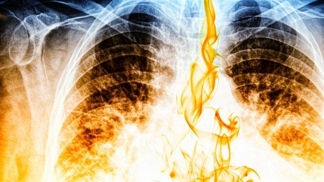 Le cancer du poumon causé par le gène ALK est désormais ...