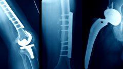 Images d'implants médicaux de patients.